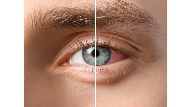 سبب انحراف العين