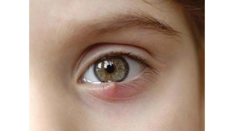 إهمال علاج التهاب العين خطر على النظر صحيفة الخليج
