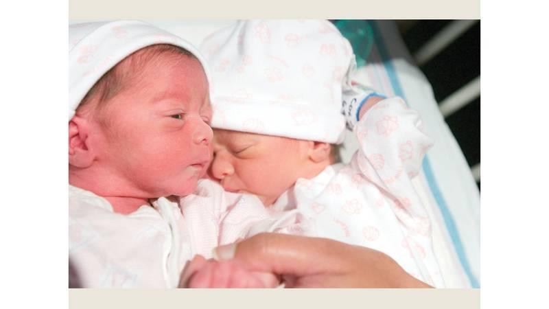 الولادة المبكرة أفضل لصحة التوائم ملحق الصحة و الطب ملاحق الخليج