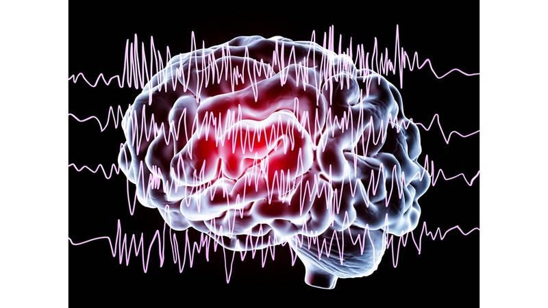 خلل كهرباء المخ تشنجات عصبية وفقدان للوعي صحيفة الخليج