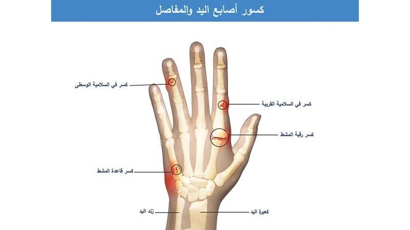 أصابع اليد وإصاباتها صحيفة الخليج