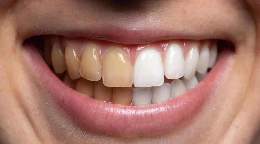 جلسات التبييض تزيل تصبغات الأسنان بشروط صحيفة الخليج