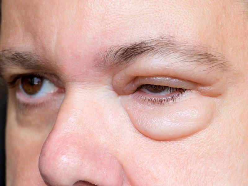 تورم الجفن حساسية عين وعدوى بكتيرية صحيفة الخليج