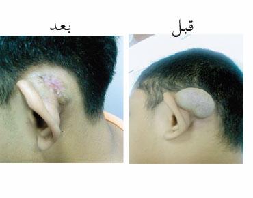 ●.● إزالة جراحة مدينة الشيخ