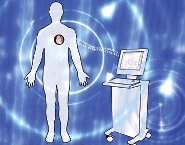 مراقبة السرطان بشريحة إلكترونية تزرع في الجسم
