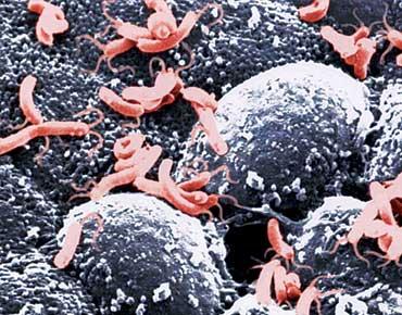 لتحديد العوامل المسببة للعدوى والبدء في العلاج العلاجي هيليكوباكتر بيلوري  الشعبي ، فمن الضروري الخضوع لفحص طبي.